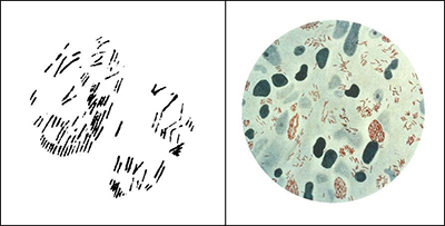 "Figure 4. Left: Hansen's drawing (1880) of ""brown elements colored with methyl violet, from a tubercle treated with osmic acid."" From Hansen (1880). Right: A photomicrograph of Mycobacterium Leprae (small red rods), taken from a leprosy skin lesion. Public domain. Courtesy of the U.S. Centers for Disease Control and Prevention, Public Health Image Library (PHIL) #2123."