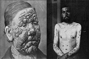 Maculo-anesthetic (tuberculoid or paucibacillary) leprosy (left) and lepromatous (multibacillary) leprosy (right). Tuberculoid leprosy is characterized by hypopigmented skin macules and anaesthetic patches from damaged peripheral nerves, while lepromatous leprosy is characterized by symmetric skin lesions, nodules, plaques and thickened dermis with detectable nerve damage typically late in the illness. (From Walker, 1905)